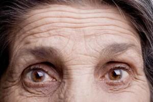adivinar arrugas frente